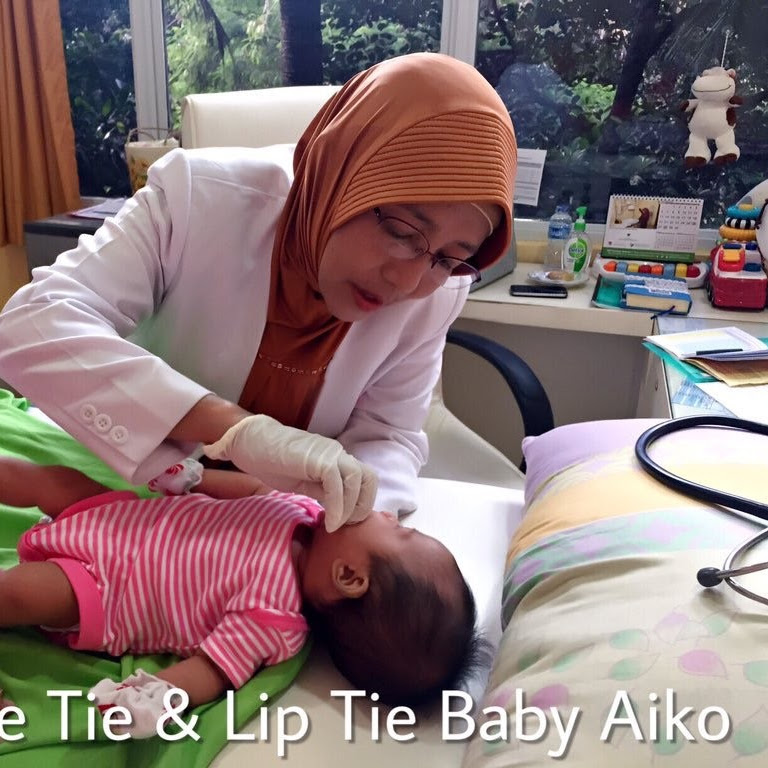 Tongue Tie Dan Lip Tie Saat Aiko Lahir | ASI Talk With Maiko