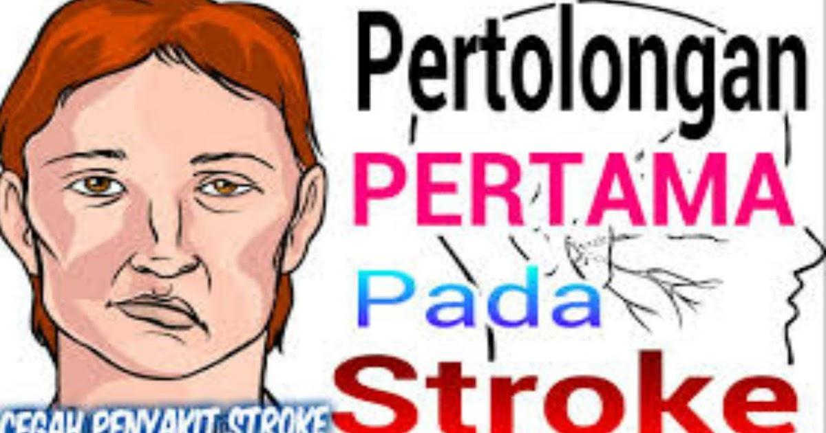 mendeteksi gejala stroke sejak dini dan kenali ciri