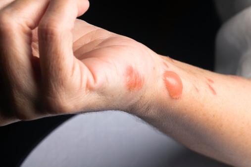 cara mengobati dan menghilangkan bekas luka bakar