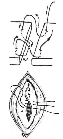 """MAYO  Esta sutura perdida, também denominada  """"JAQUETÃO"""" promove a imbricação ou  superposição lateral das bordas da ferida,  proporcionando uma larga faixa de aderência e,  conseqüentemente, melhor cicatrização. Foi  desenvolvida para ser empregada no  fechamento de anel herniário."""