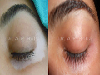 http://www.vitiligopedia.com/medical-management/systemic/