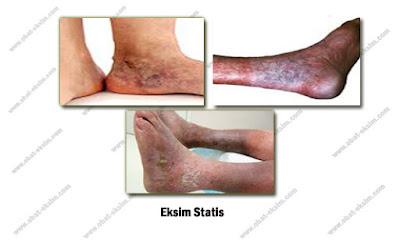 Gambar Penyakit Eksim