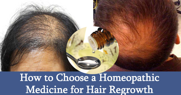 How to Choose a Homeopathic Medicine for Hair Regrowth