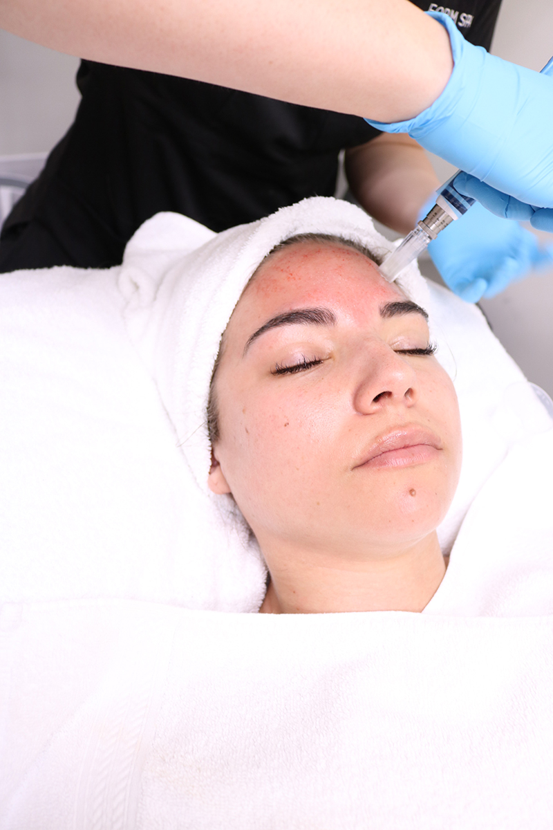 "Medical spas are now doing a ""vampire facial"" to give your skin a more youthful look by producing collagen, plasma facial, vampire facial"