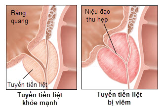 Thắc mắc về bệnh viêm tuyến tiền liệt