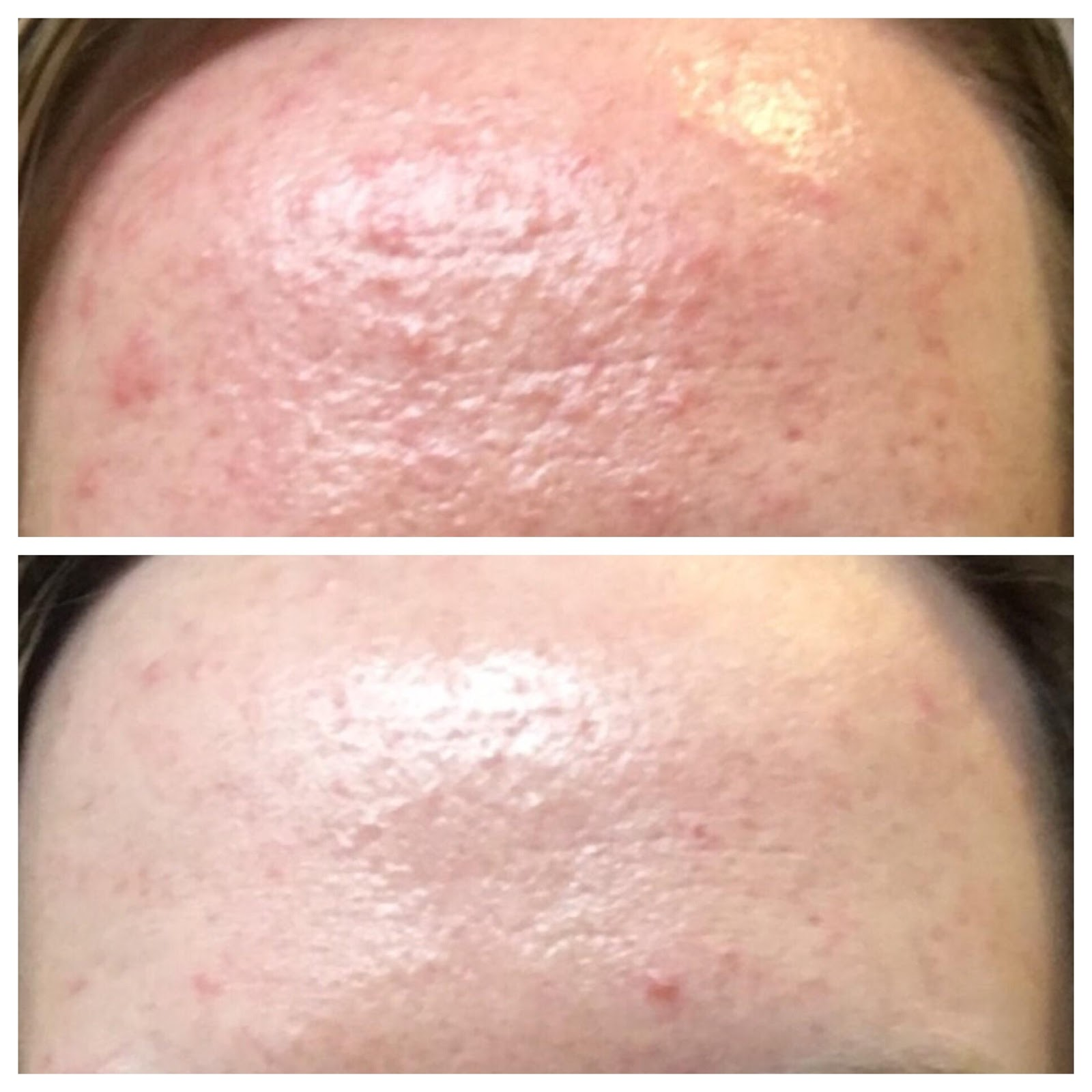 Sharing With Keen How To Treat Tiny Bumps Fungal Acne
