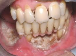 What is Phossy Jaw - Definition, Symptoms, Causes, Treatment