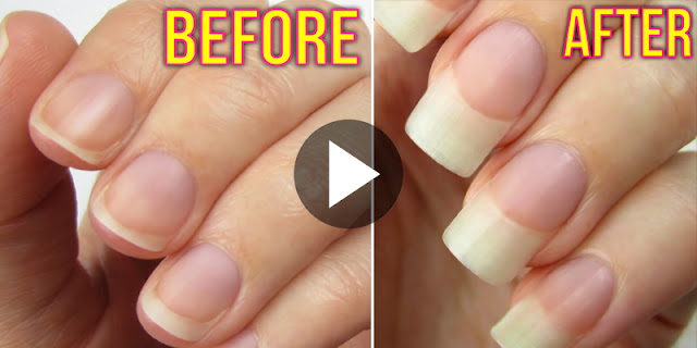 5 Ways To Grow Your Nails Very Fast!