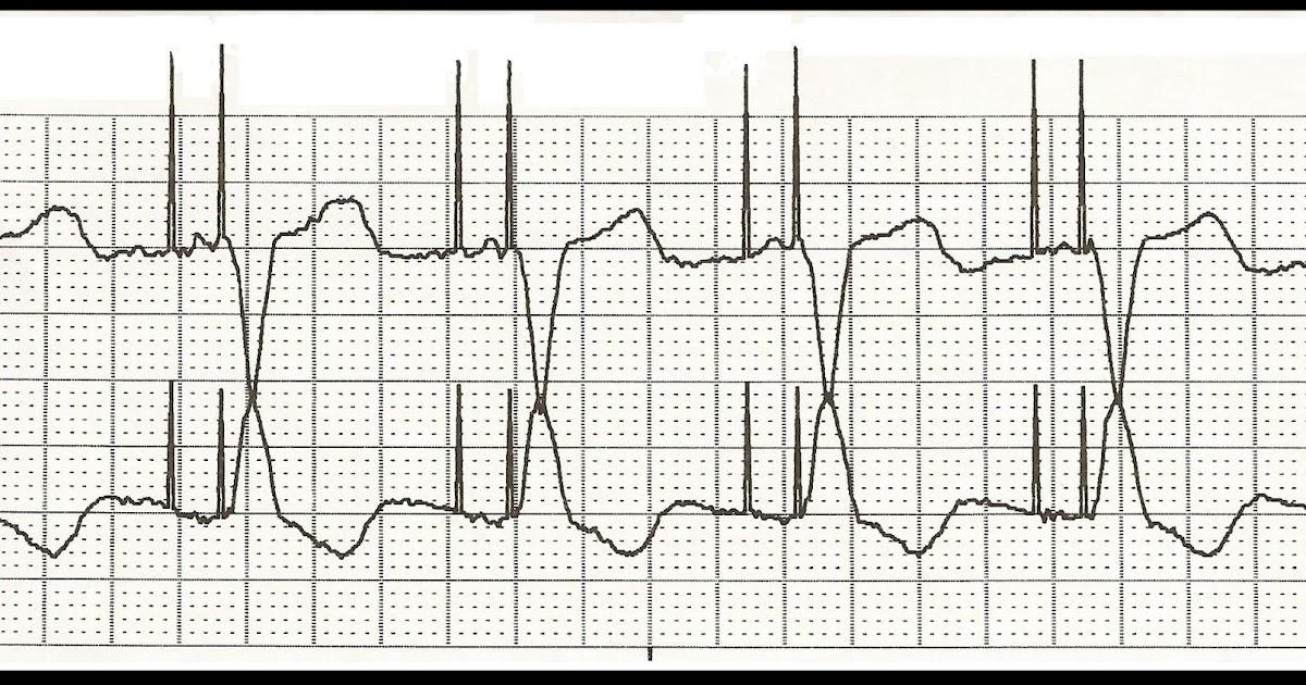 Float Nurse: ECG Rhythm Strip Quiz 118