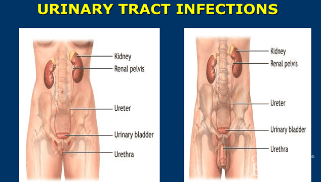 why urine infection happens again and again