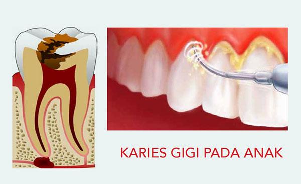 Mencegah Rampan Karies Pada Gigi Anak