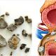 5 Makanan Yang Dapat Menyebabkan Batu Ginjal