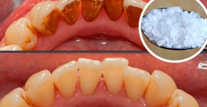 Natural Recipe To Naturally Remove Plaque From Teeth