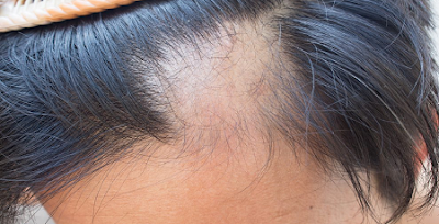 HAIR LOSS AND IT CAUSES IN WOMEN, HAIR LOSS, hair loss in women