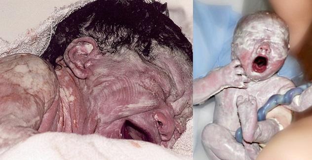 Bayi Baru Lahir Ada Keputihan Sebab Mak Bapak 'PROJEK' Time Ibu Mengandung ? Ini JAWAPAN Doktor Yg Sgt MENGEJUTKAN Kita !