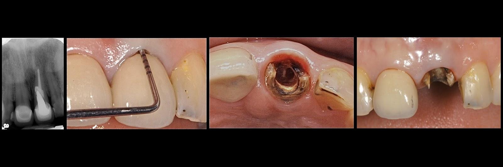 許榮仁假牙專科 (贗復牙醫專科) Jacksyu prosthodontist: 2012-10-21