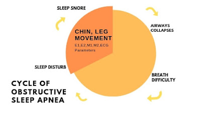 Sleep Apnea, Sleep Paralysis, Sleep Study Details