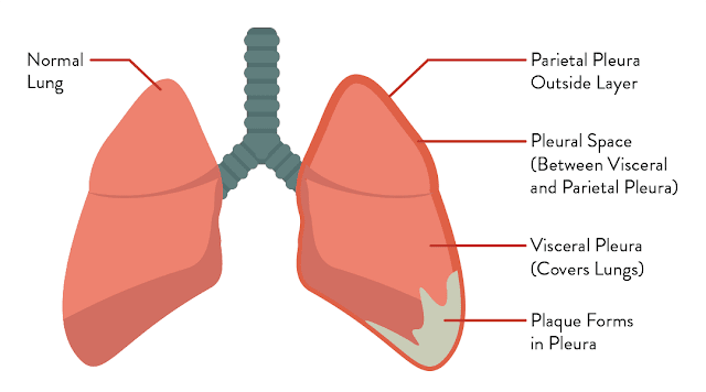 Know the Sorts of Mesothelioma