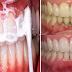 AYO BURUAN..!!! Bilas Gigi Anda dengan Campuran Ini dalam 5 Menit Tartar dan Plak Hilang dari Gigi Anda dan Nafas Pun Jadi Wangi Tanpa Harus Pergi Ke Dokter Gigi !