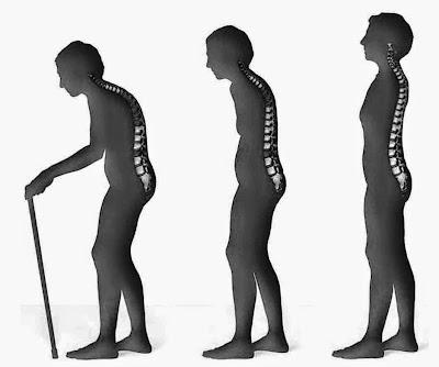 Osteoporosis tidak hanya menyerang perempuan