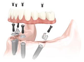 Cấy răng Implant có cần ghép xương không?