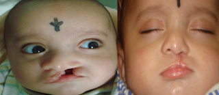 A cleft is a gap or split in the upper lip