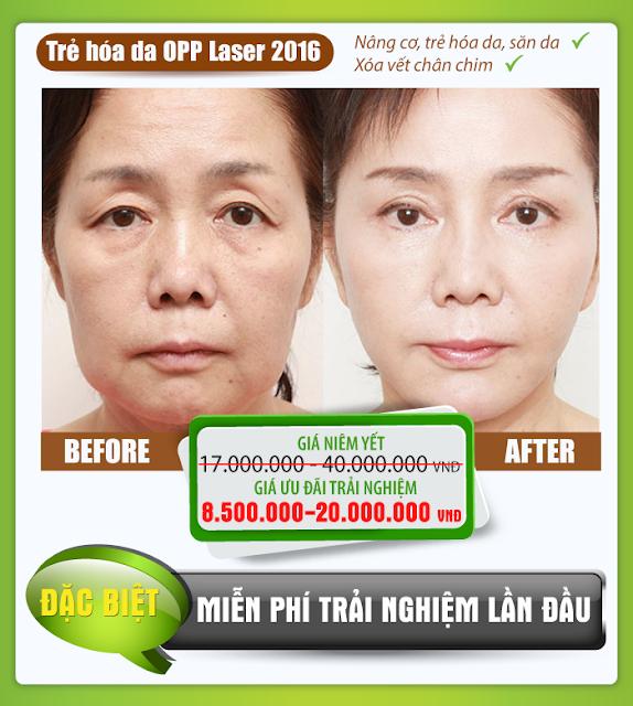 Trẻ hóa da OPP Laser 2016
