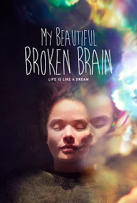 Watch My Beautiful Broken Brain Online Free in HD