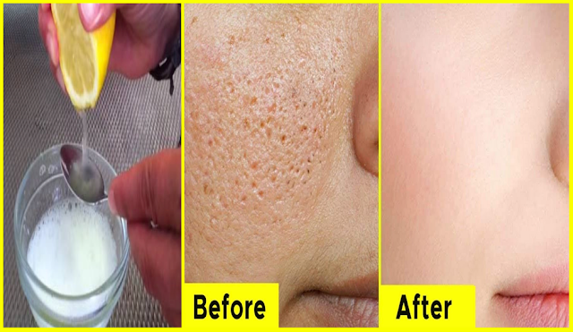 Top Skin Repair: It Only Takes 2 Ingredient To Remove Pores On Your Face