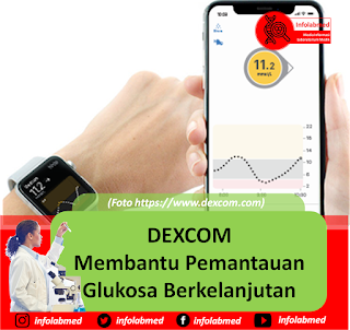dexcom,dexcom g6,dexcom g6 price,dexcom g5,dexcom clarity,dexcom stock,dexcom canada,dexcom g6 transmitter,dexcom careers,dexcom g6 app,dexcom phone number,dexcom g6 reviews,dexcom login,dexcom transmitter,dexcom san diego,dexcom g5 transmitter,dexcom g7,dexcom g5 sensor,dexcom app,dexcom price,dexcom uk,dexcom apple watch,dexcom address,dexcom account,dexcom australia,dexcom api,dexcom arrows,dexcom at costco,dexcom adhesive,dexcom and omnipod,dexcom and fitbit,dexcom apple watch complication,dexcom and tylenol,dexcom android,dexcom airport security,dexcom apple watch series 4,dexcom apple watch face,dexcom apple,dexcom arizona,dexcom alternative,dexcom bgc,dexcom blood glucose monitor,dexcom billing,dexcom bleeding,dexcom board of directors,dexcom benefits,dexcom battery,dexcom bill pay,dexcom bloomberg,dexcom buy,dexcom backorder,dexcom belt,dexcom battery replacement,dexcom bandage,dexcom blood sugar machine,dexcom blog,dexcom burnaby,dexcom back of arm,dexcom buy online,dexcom brasil,dexcom cgm,dexcom contact,dexcom cost,dexcom clarity app,dexcom cgm cost,dexcom clarity login,dexcom compatibility,dexcom clarity eu,dexcom clarity canada,dexcom costco,dexcom clarity uk,dexcom compatible phones,dexcom canada contact,dexcom coupon,dexcom competitors,dexcom cgm g6,dexcom canada cost,dexcom diabetes,dexcom distributors,dexcom direct to apple watch,dexcom discount card,dexcom download,dexcom deutschland,dexcom diabetes app,dexcom dash,dexcom data,dexcom developer,dexcom devices,dexcom diabetes stock,dexcom dme,dexcom download data,dexcom d5,dexcom diabetes price,dexcom data scientist,dexcom disconnected,dexcom double arrow down,dexcom earnings,dexcom edinburgh,dexcom email,dexcom eu,dexcom employment,dexcom earnings call,dexcom employees,dexcom edinburgh address,dexcom error messages,dexcom earnings report,dexcom europe,dexcom engineer salary,dexcom email format,dexcom employee benefits,dexcom error,dexcom events,dexcom edgepark,dexcom executives,dexcom egypt,dexcom error code hwbbt