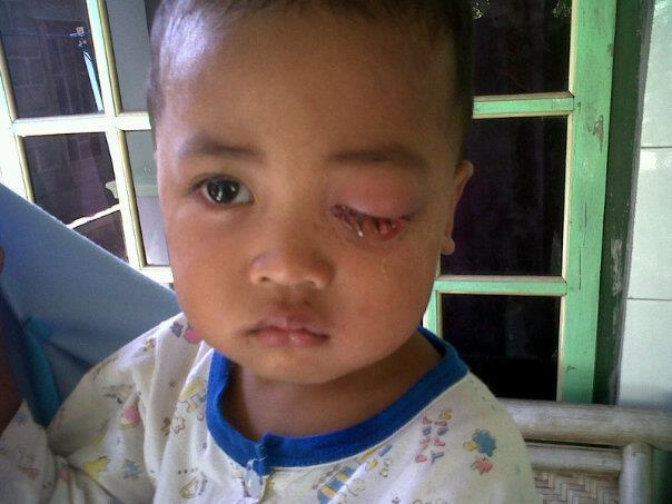 Penyebab Kanker Mata Pada Anak Dan Cara Mencegahnya ...