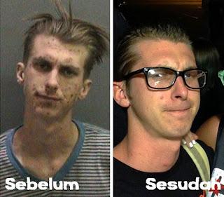 Foto Wajah Orang-Orang Sebelum dan Sesudah Sembuh Dari Narkoba