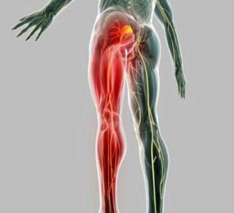 Lado afecta qué nervio de ciático el