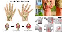 https://steviaven.blogspot.com/2018/05/6-tratamientos-alternativos-curar-dolor-artritis.html