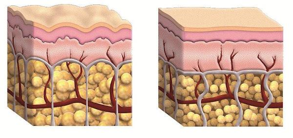 Rutina diaria para eliminar la celulitis
