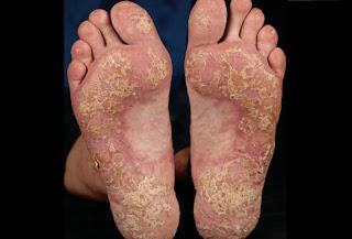 cara mengobati eksim kering di pergelangan kaki dan betis yang sudah tahunan
