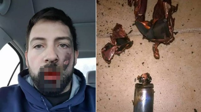 Andrew Hall (30) kehilangan gigi depan, pasca ledakan vape dimulutnya