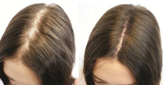 Durch Diese 10 Hausmittel Bekommst Du Naturlich Volles Haar