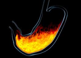Natural Remedies For Heartburn And Heartburn 3