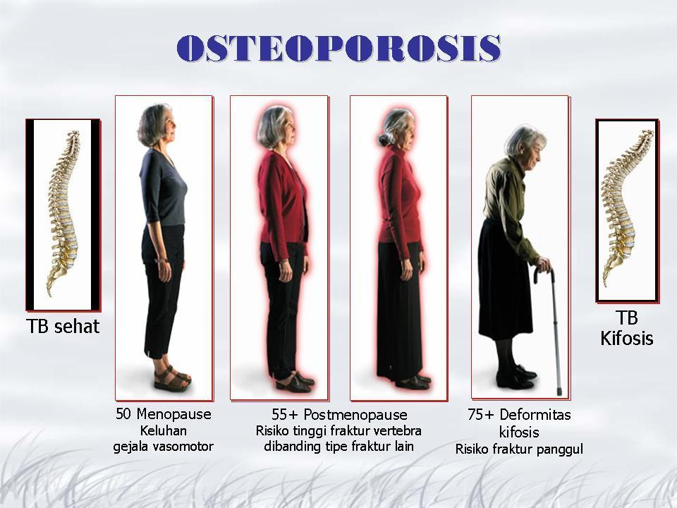 gambar penyakit tulang osteoporosis