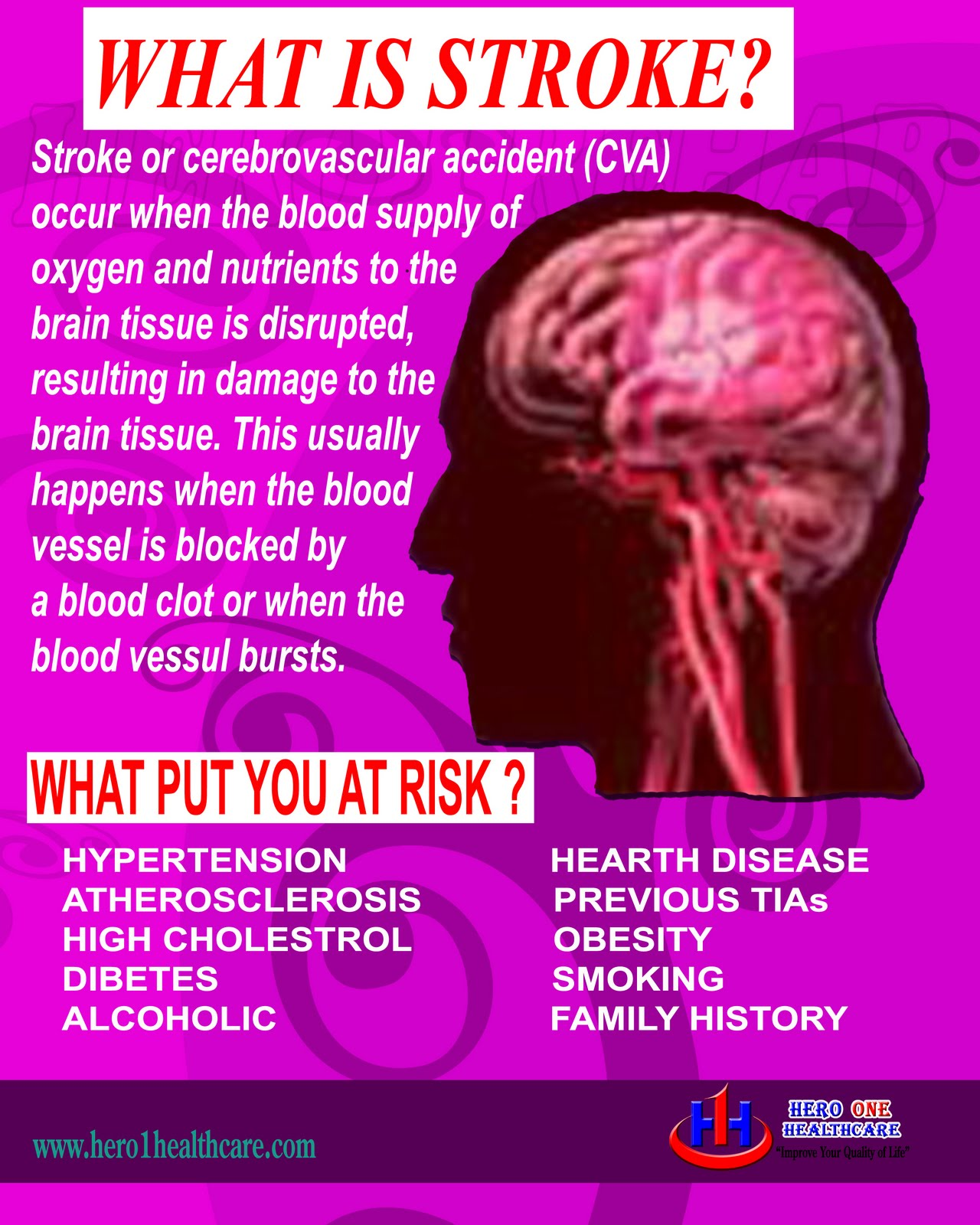 hero one healthcare medical info stroke cerebral vascular