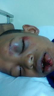 Madre publica en Facebook perturbadora imagen de su hijo agredido por un enajenado mental en Barahona.