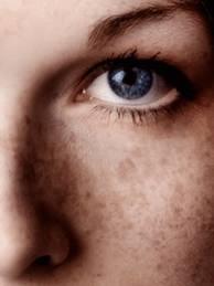 remedios caseros para las manchas de acne