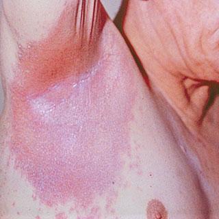 psoriasis cours infirmier inversé aisselles