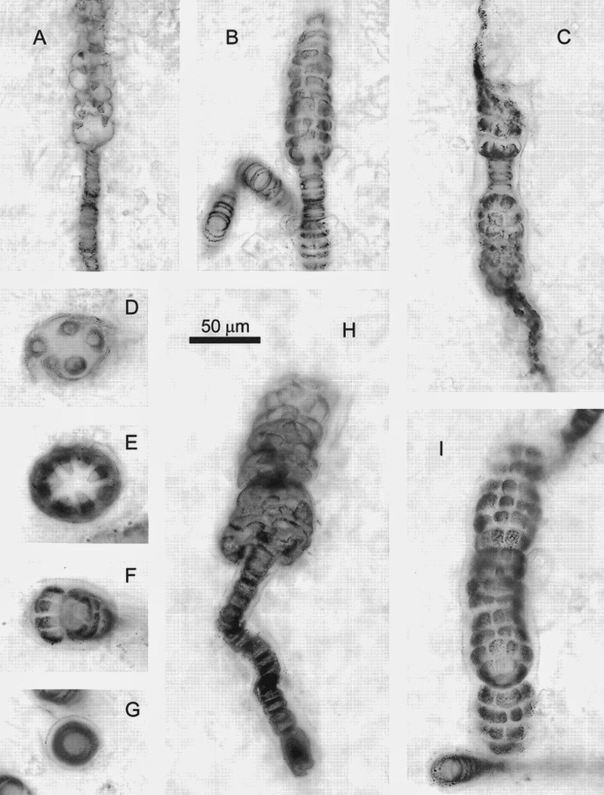 Sexy, Sexy Eukaryotes invent sex