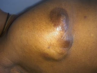 Skin involvement in breast showing a skin nodule  surrounded by edema (peau d orange)