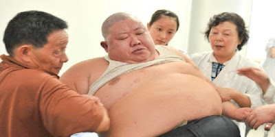 diabetes causada por la obesidad autoinfligida