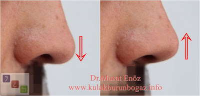 Nose tip drooping - Nose tip reshaping - Nose tip plasty - Nose tip reduction - Nasal tip plasty - Nasal tip rhinoplasty - Rhinoplasty in Istanbul - Rhinoplasty in Turkey