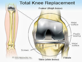 Best hospital for knee replacement India