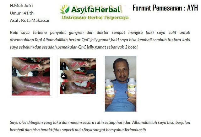Obat Luka Gangren Herbal